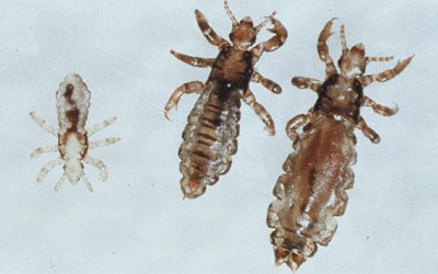 Five Tips to Protect Your Kids from Head Lice