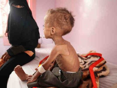 Over 2 Million Children in Yemen Are Malnourished: UNICEF