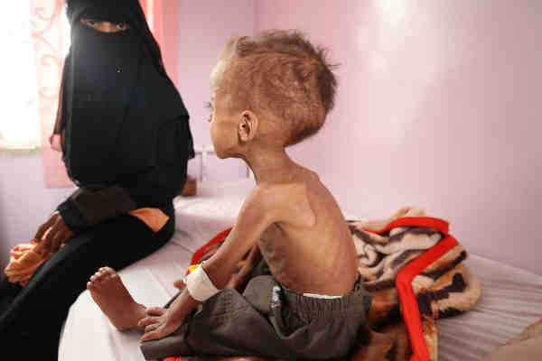 Faisal, 18 months old is treated for severe acute malnutrition at Sabeen hospital in Yemen's capital Sana'a. Photo: UNICEF / Yasin